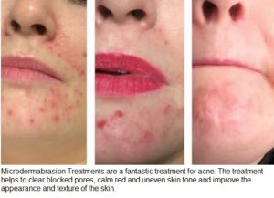 Microdermabrasion Treatments in Sileby